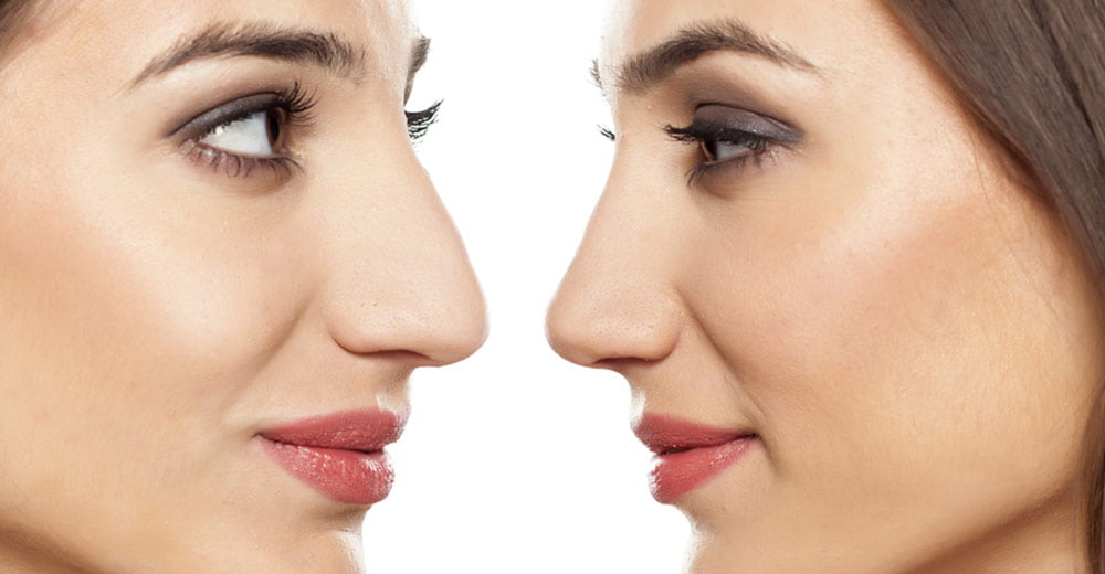 Choosing the right nose for your face!