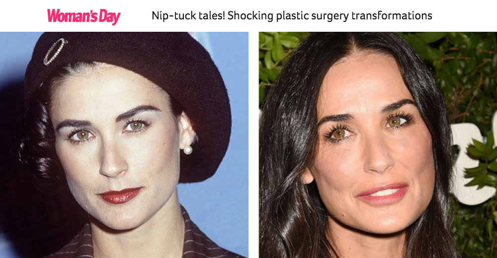 Women's Day feature - Nip-tuck tales! Shocking plastic surgery transformations