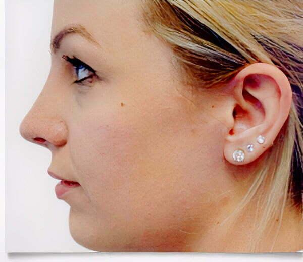rhinoplasty-blonde-after-2021