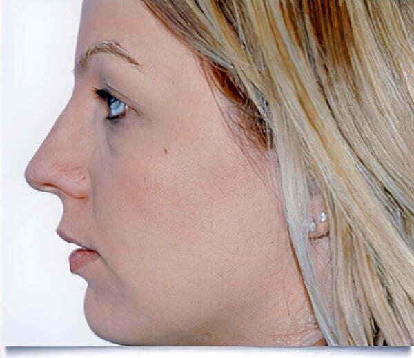 rhinoplasty-blonde-before-2021
