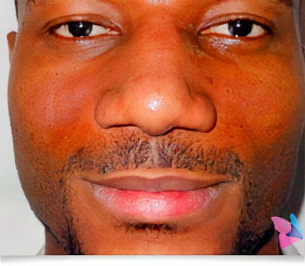 rhinoplasty-man-after-2021