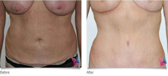tummy_tuck_before_and_after_photo