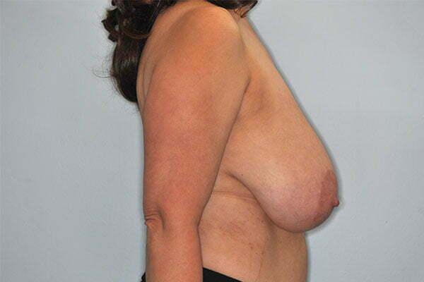 kj-breast-reduction-1a