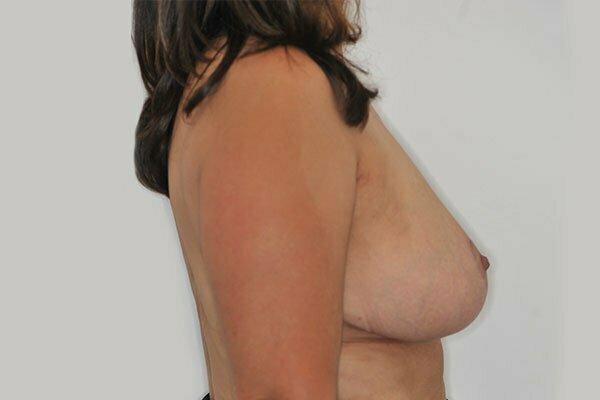 kj-breast-reduction-1b