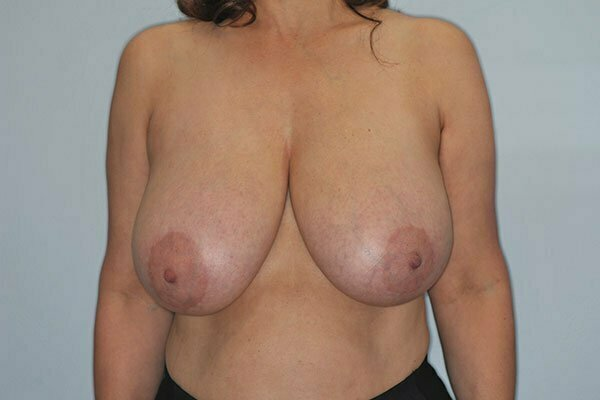 kj-breast-reduction-2a