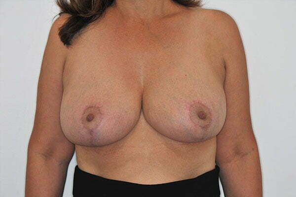kj-breast-reduction-2b