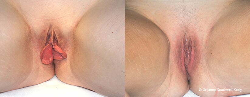 vagina reduction sydney