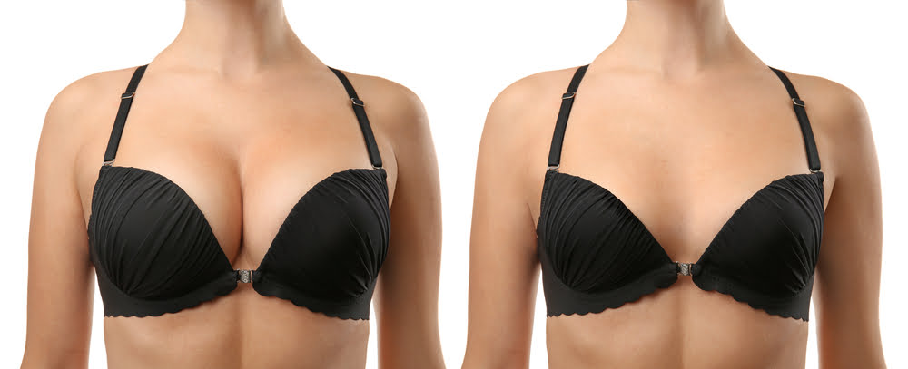 Dr JSK Revision Surgery Series Part 3: Fixing Breast Implants