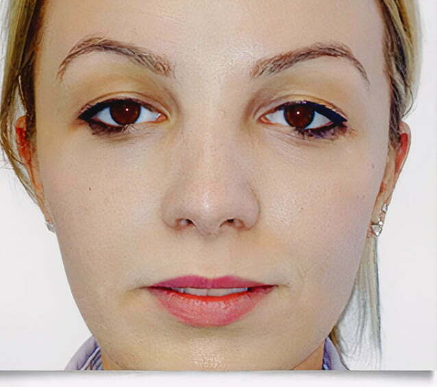 rhinoplasty-blonde-2-after-1