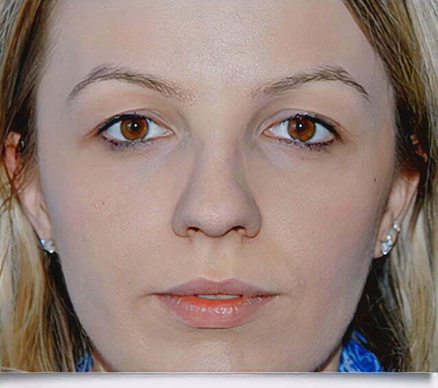 rhinoplasty-blonde-2-before-1