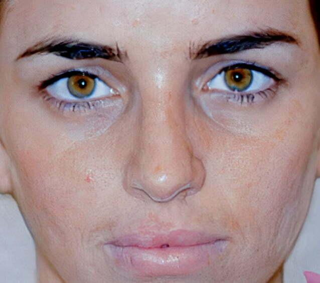 rhinoplasty-brunette-2-after