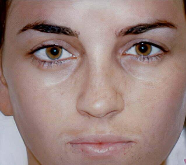 rhinoplasty-brunette-2-before