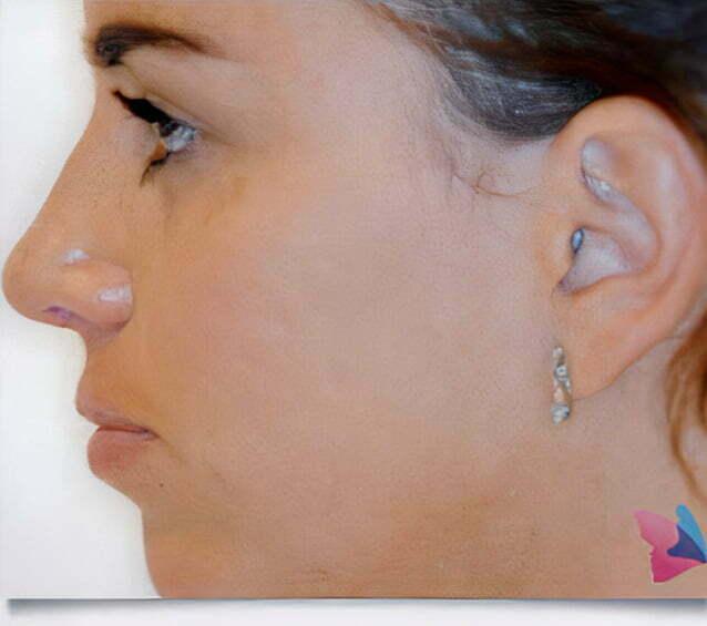 rhinoplasty-brunette-after