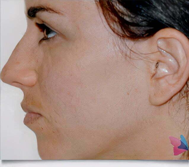 rhinoplasty-brunette-before